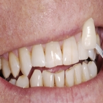 Complete Teeth Implants in Abernyte 7