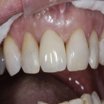 Complete Teeth Implants in Ailsworth 7