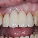 Complete Teeth Implants in Derbyshire 6