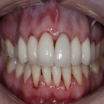 Complete Teeth Implants in Derbyshire 9