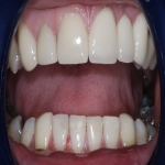 Complete Teeth Implants in Derbyshire 4