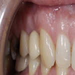 Complete Teeth Implants in Derbyshire 2
