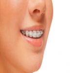 Invisalign Clear Braces in Ashburnham Forge 7