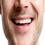 Complete Teeth Implants in Inverclyde 2