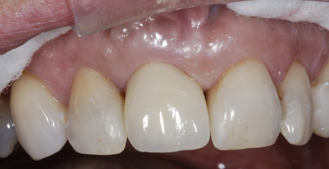 Dental Implants Treatment in Down